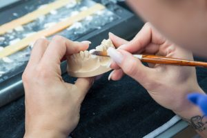 Dental technician working on veneers